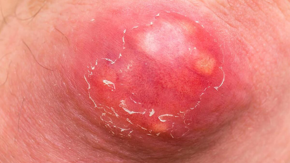 Removal of Boils