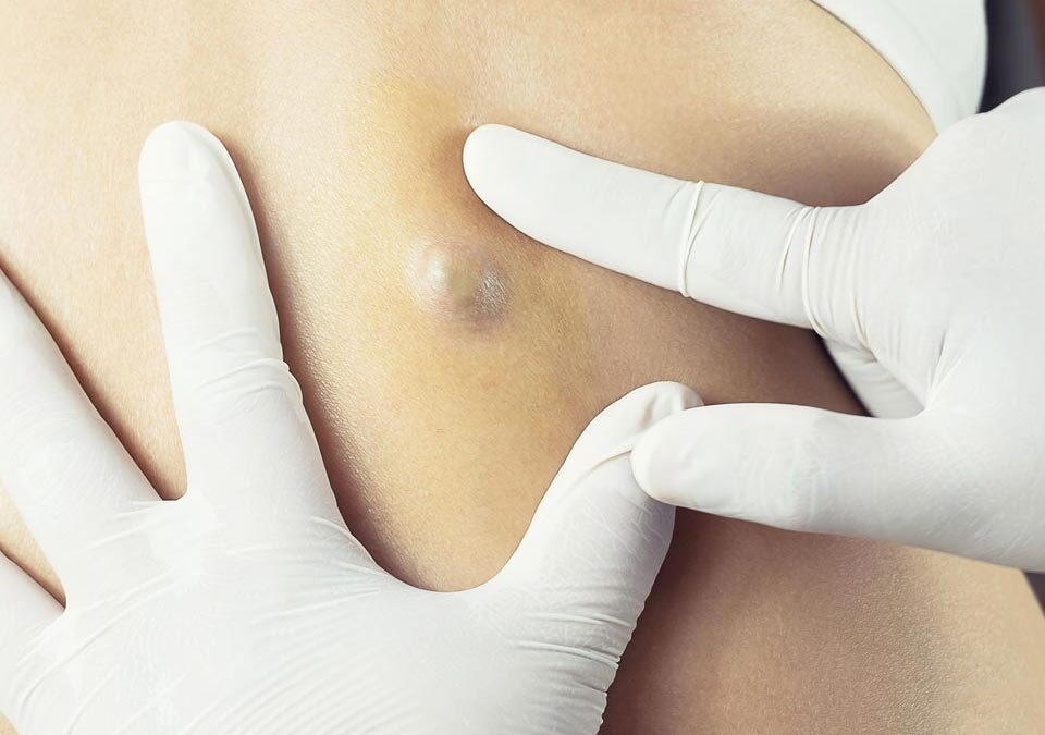 Removal of Cysts