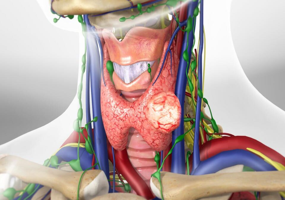 Removal of Thyroid Nodules